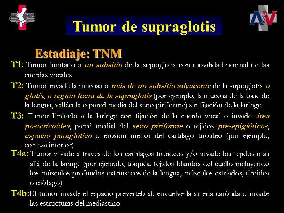 T1: Tumor limitado a la subglotis T2: Tumor se extiende a la(s) cuerda(s) vocal(es) con movilidad normal o deteriorada T3: Tumor limitado a la laringe con fijación de la cuerda vocal < 5% de todos los tumores de laringe < 5% de todos los tumores de laringe Habitualmente, el diagnóstico se realiza en estadio avanzado con afectación de las cuerdas vocales Habitualmente, el diagnóstico se realiza en estadio avanzado con afectación de las cuerdas vocales Tumor de subglotis Estadiaje: TNM T4a: Tumor invade a través de los cartílagos tiroideos y/o invade los tejidos más allá de la laringe (por ejemplo, traquea, tejidos blandos del cuello incluyendo los músculos profundos extrínsecos de la lengua, músculos estriados, tiroidea o esófago) T4b: El tumor invade el espacio prevertebral, envuelve la arteria carótida o invade las estructuras del mediastino