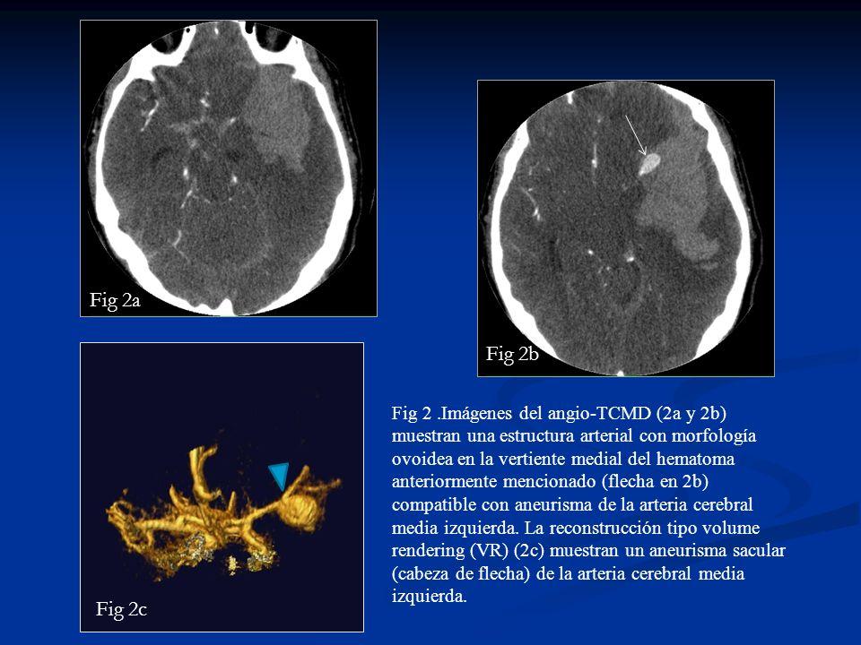 Fig 2.Imágenes del angio-TCMD (2a y 2b) muestran una estructura arterial con morfología ovoidea en la vertiente medial del hematoma anteriormente menc