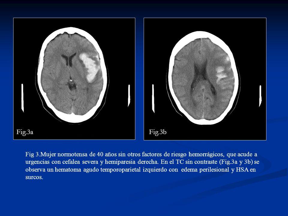 Fig 3.Mujer normotensa de 40 años sin otros factores de riesgo hemorrágicos, que acude a urgencias con cefalea severa y hemiparesia derecha. En el TC