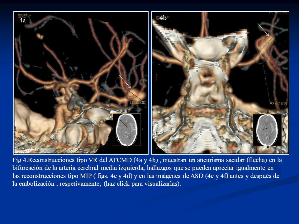 4e4f 4d4c Fig 4.Reconstrucciones tipo VR del ATCMD (4a y 4b), muestran un aneurisma sacular (flecha) en la bifurcación de la arteria cerebral media iz