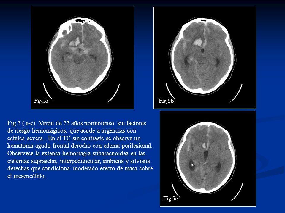 Fig 5 ( a-c).Varón de 75 años normotenso sin factores de riesgo hemorrágicos, que acude a urgencias con cefalea severa. En el TC sin contraste se obse