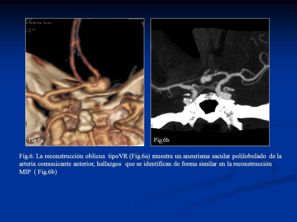 Fig.6. La reconstrucción oblicua tipoVR (Fig.6a) muestra un aneurisma sacular polilobulado de la arteria comunicante anterior, hallazgos que se identi