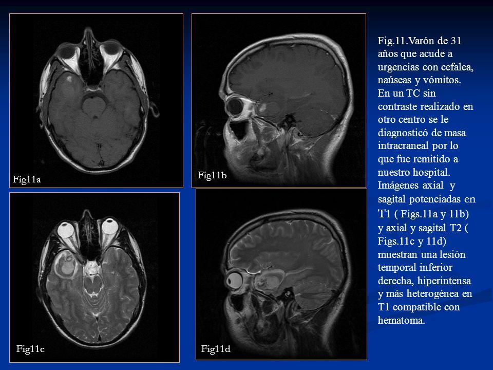 Fig.11.Varón de 31 años que acude a urgencias con cefalea, naúseas y vómitos. En un TC sin contraste realizado en otro centro se le diagnosticó de mas
