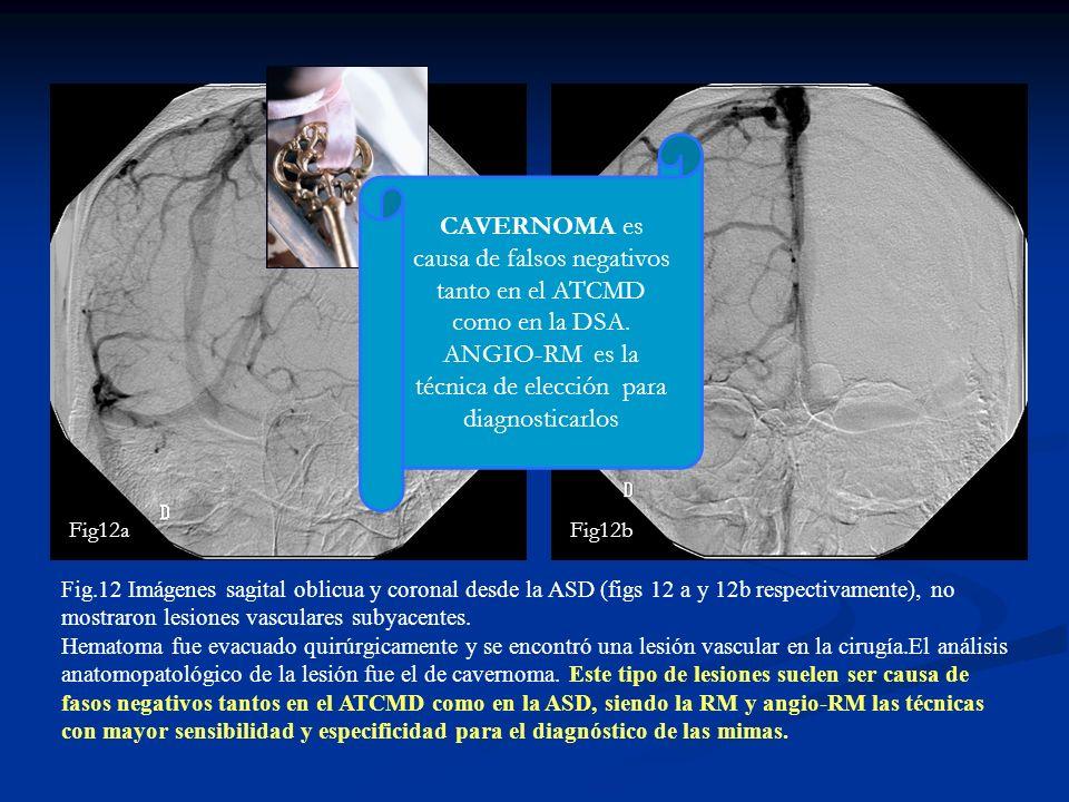 Fig.12 Imágenes sagital oblicua y coronal desde la ASD (figs 12 a y 12b respectivamente), no mostraron lesiones vasculares subyacentes. Hematoma fue e