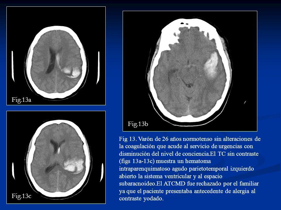 Fig 13. Varón de 26 años normotenso sin alteraciones de la coagulación que acude al servicio de urgencias con disminución del nivel de conciencia.El T