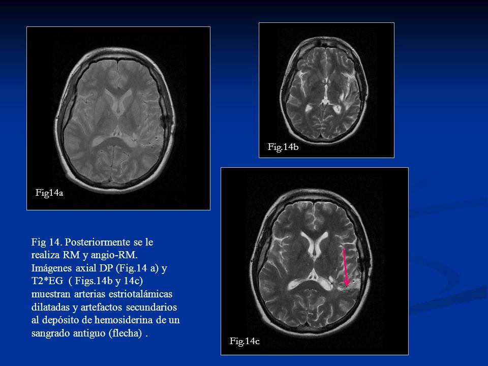 Fig 14. Posteriormente se le realiza RM y angio-RM. Imágenes axial DP (Fig.14 a) y T2*EG ( Figs.14b y 14c) muestran arterias estriotalámicas dilatadas