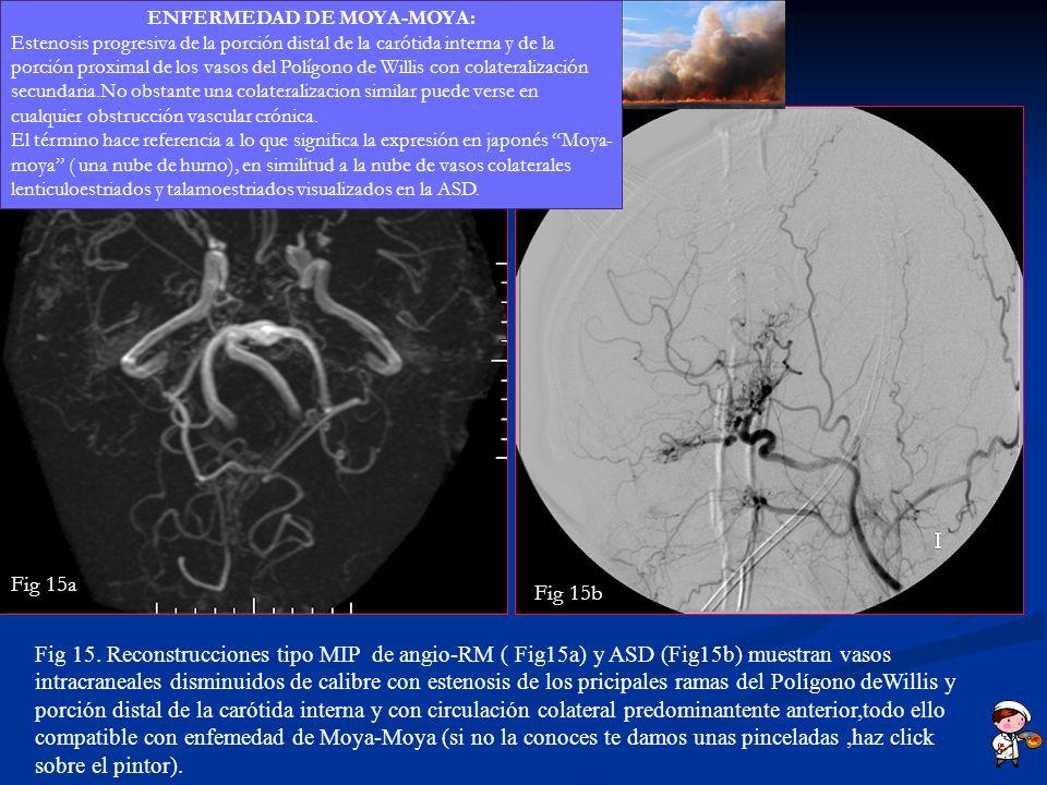 Fig 15. Reconstrucciones tipo MIP de angio-RM ( Fig15a) y ASD (Fig15b) muestran vasos intracraneales disminuidos de calibre con estenosis de los prici