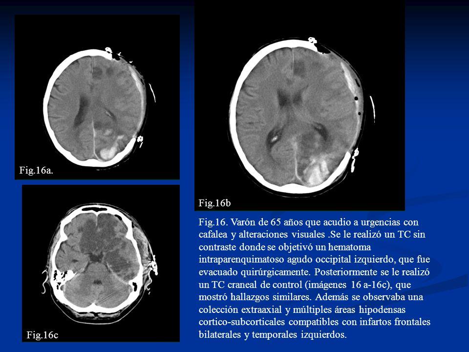 Fig.16. Varón de 65 años que acudio a urgencias con cafalea y alteraciones visuales.Se le realizó un TC sin contraste donde se objetivó un hematoma in