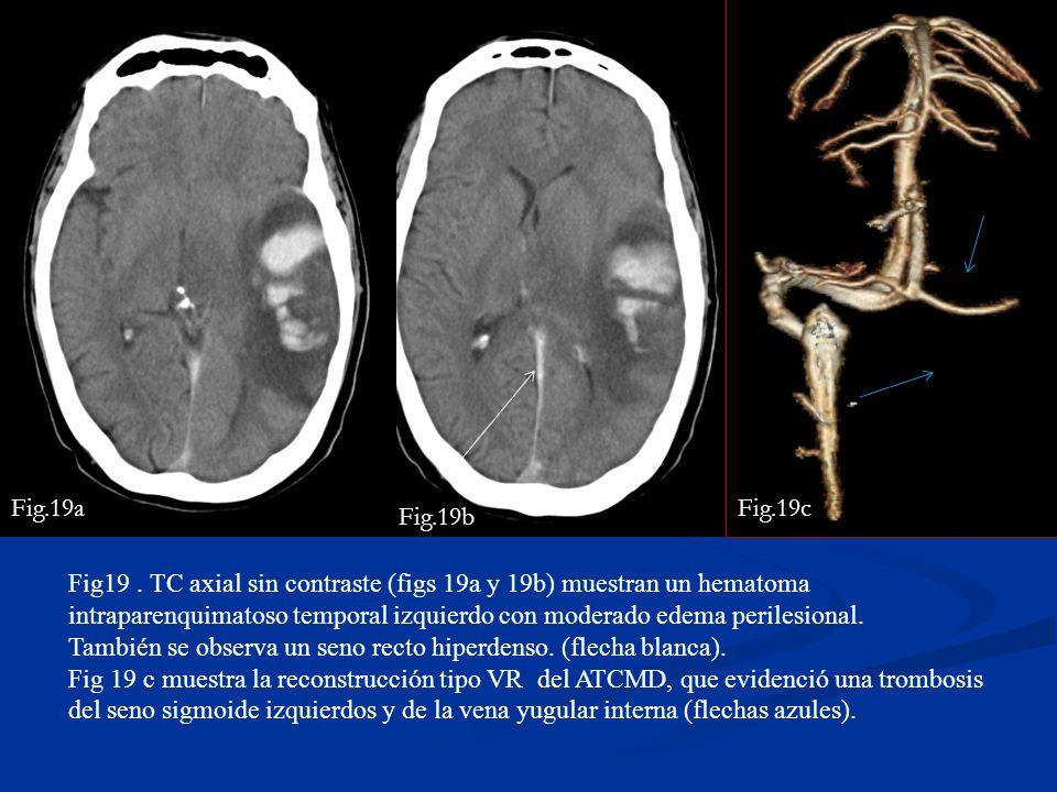 Fig19. TC axial sin contraste (figs 19a y 19b) muestran un hematoma intraparenquimatoso temporal izquierdo con moderado edema perilesional. También se