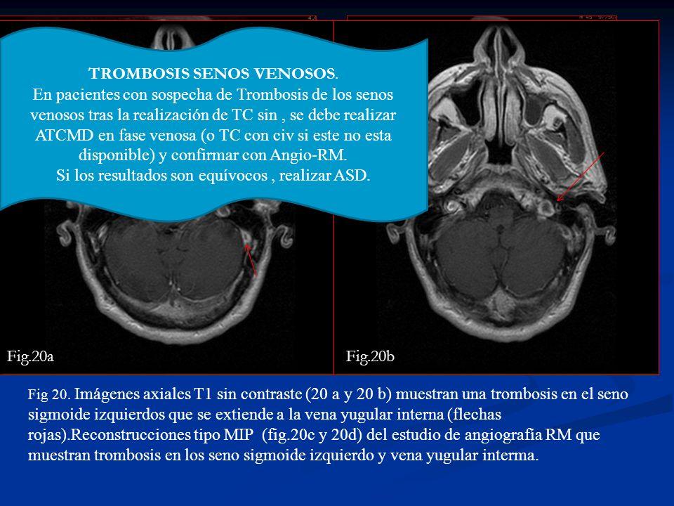 Fig.20dFig.20c Fig 20. Imágenes axiales T1 sin contraste (20 a y 20 b) muestran una trombosis en el seno sigmoide izquierdos que se extiende a la vena