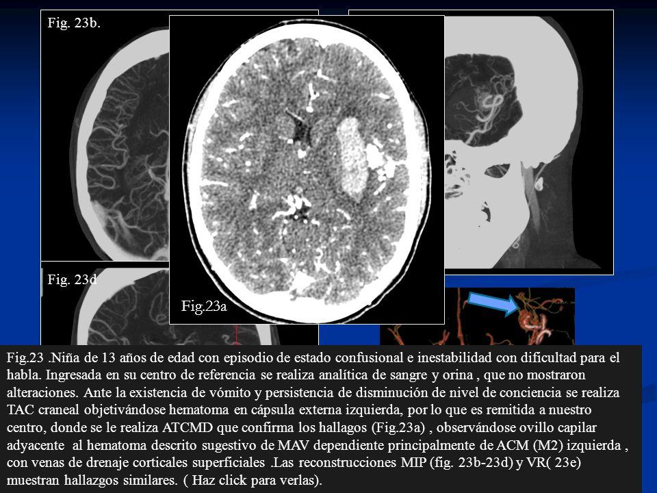 Fig24.Posteriormente se le realizó ASD que confirmó los hallazgos del ATCMD (flechas en las imágenes coronal y sagital 24a y 24b respectivamente de la ASD ).