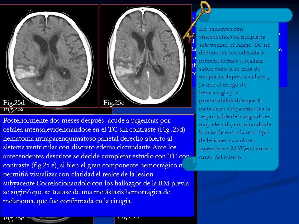 Fig.25. Paciente de 58 años con antecedente ya conocido de melanoma metastasico.Se le realiza RM de control por historia de mareo de 15 días de evoluc