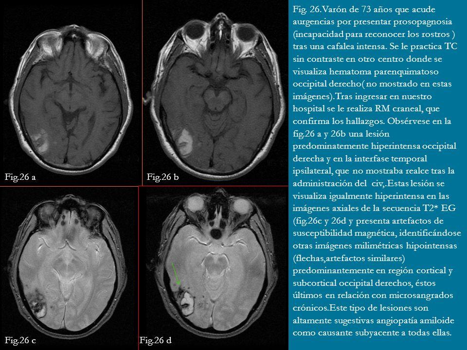 Fig. 26.Varón de 73 años que acude aurgencias por presentar prosopagnosia (incapacidad para reconocer los rostros ) tras una cafalea intensa. Se le pr