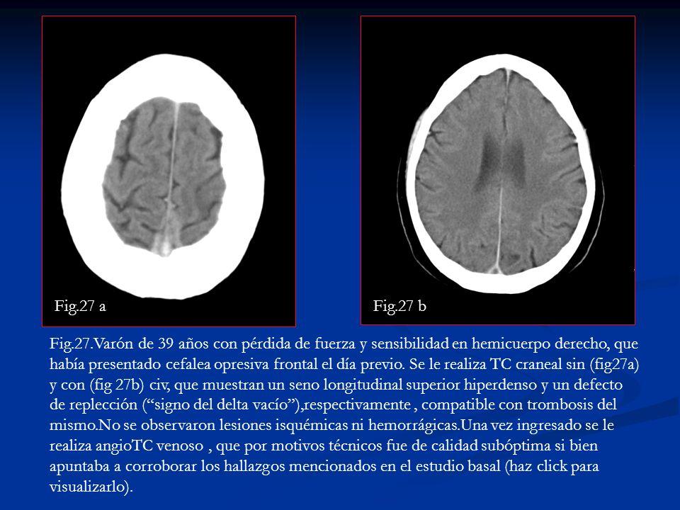 Fig.27.Varón de 39 años con pérdida de fuerza y sensibilidad en hemicuerpo derecho, que había presentado cefalea opresiva frontal el día previo. Se le