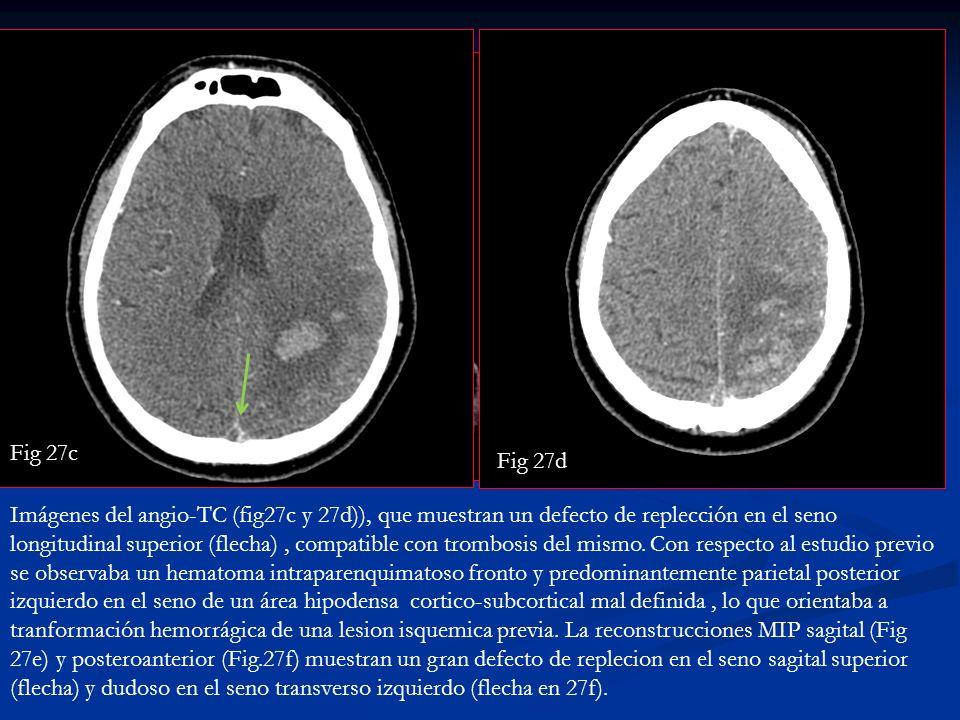 Fig 27f Fig.27e Imágenes del angio-TC (fig27c y 27d)), que muestran un defecto de replección en el seno longitudinal superior (flecha), compatible con