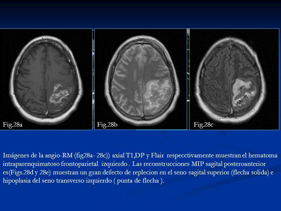 Imágenes de la angio-RM (fig28a- 28c)) axial T1,DP y Flair respecctivamente muestran el hematoma intraparenquimatoso frontoparietal izquierdo. Las rec