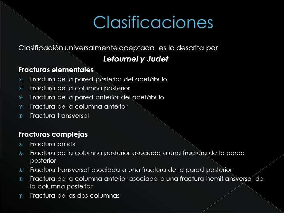 Clasificación universalmente aceptada es la descrita por Letournel y Judet Fracturas elementales Fractura de la pared posterior del acetábulo Fractura