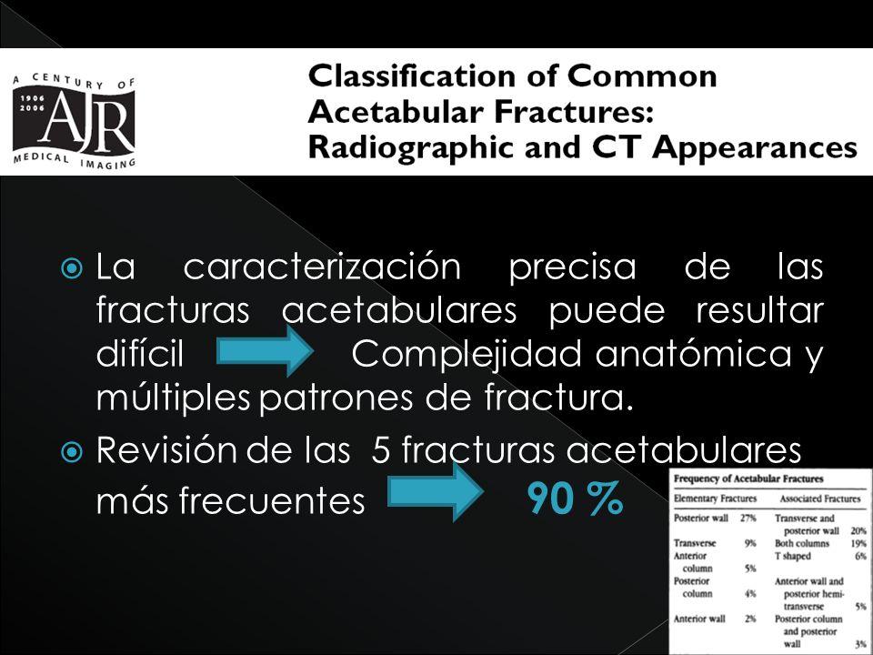 La caracterización precisa de las fracturas acetabulares puede resultar difícil Complejidad anatómica y múltiples patrones de fractura. Revisión de la