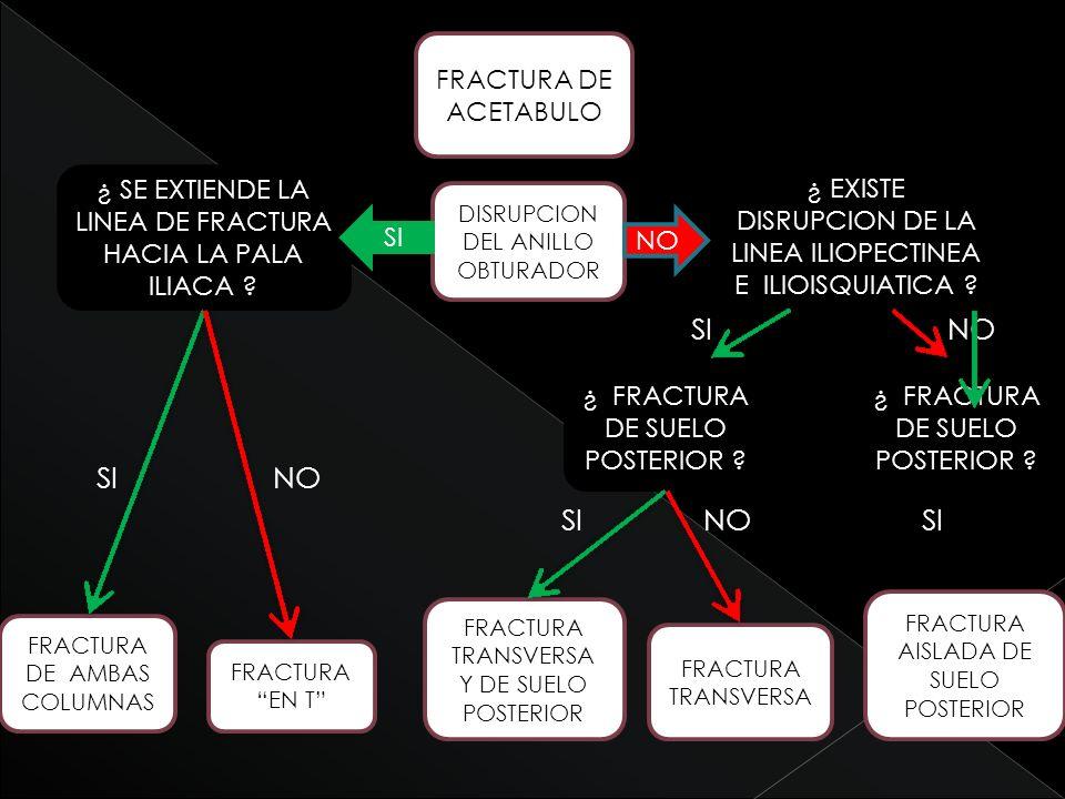 SI NO SI NO SI NO SI FRACTURA DE ACETABULO ¿ FRACTURA DE SUELO POSTERIOR ? FRACTURA TRANSVERSA Y DE SUELO POSTERIOR FRACTURA TRANSVERSA DISRUPCION DEL