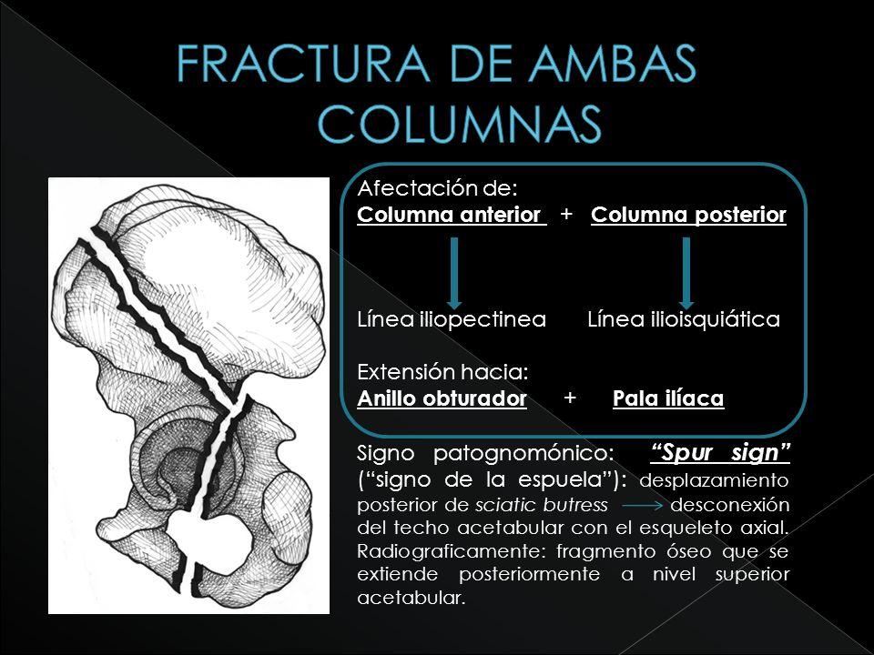 Afectación de: Columna anterior + Columna posterior Línea iliopectinea Línea ilioisquiática Extensión hacia: Anillo obturador + Pala ilíaca Signo pato