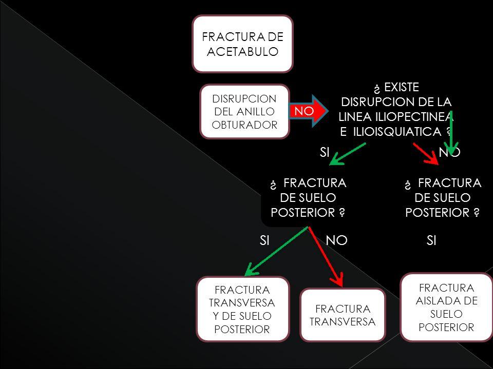 SI NO SI NO SI FRACTURA DE ACETABULO ¿ FRACTURA DE SUELO POSTERIOR ? FRACTURA TRANSVERSA Y DE SUELO POSTERIOR FRACTURA TRANSVERSA DISRUPCION DEL ANILL