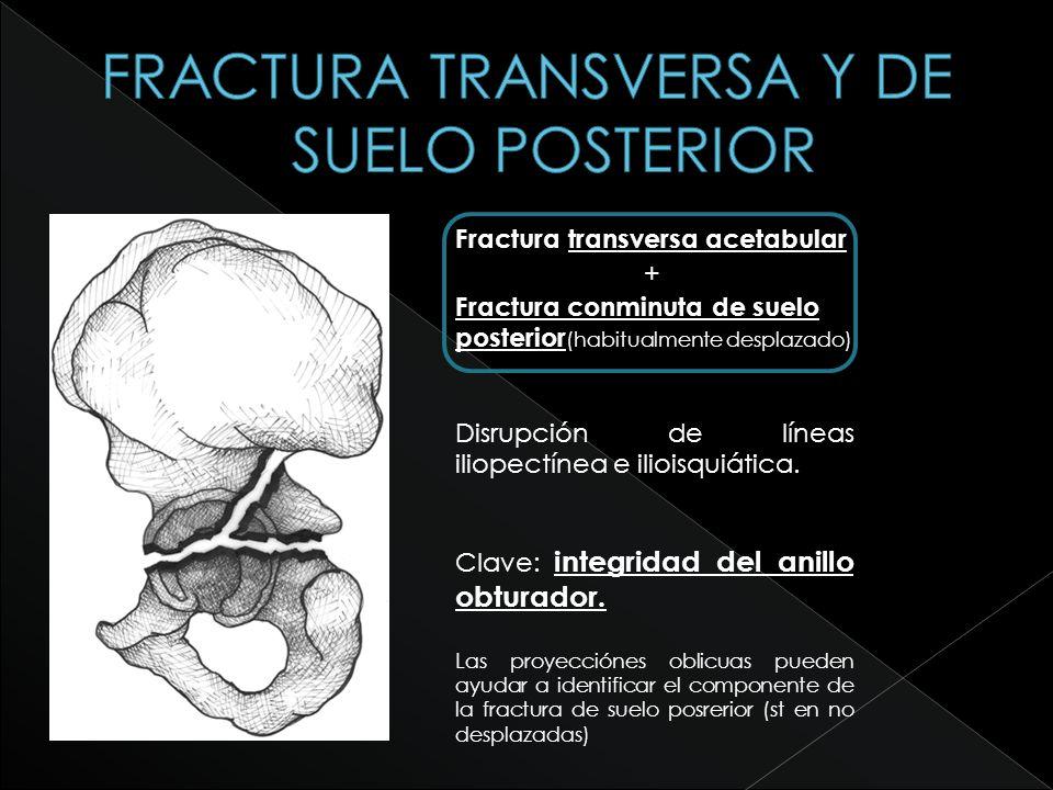 Fractura transversa acetabular + Fractura conminuta de suelo posterior (habitualmente desplazado) Disrupción de líneas iliopectínea e ilioisquiática.