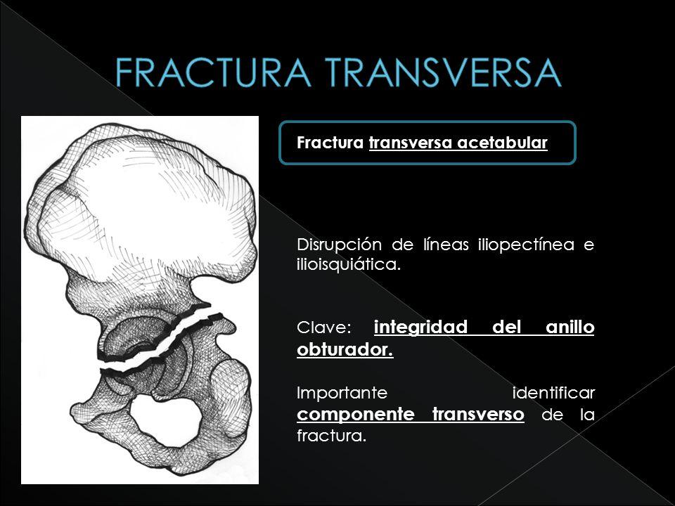 Fractura transversa acetabular Disrupción de líneas iliopectínea e ilioisquiática. Clave: integridad del anillo obturador. Importante identificar comp