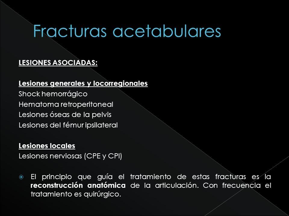 Disrupción del anillo obturador + SIN extensión a pala iliaca FRACTURA en T