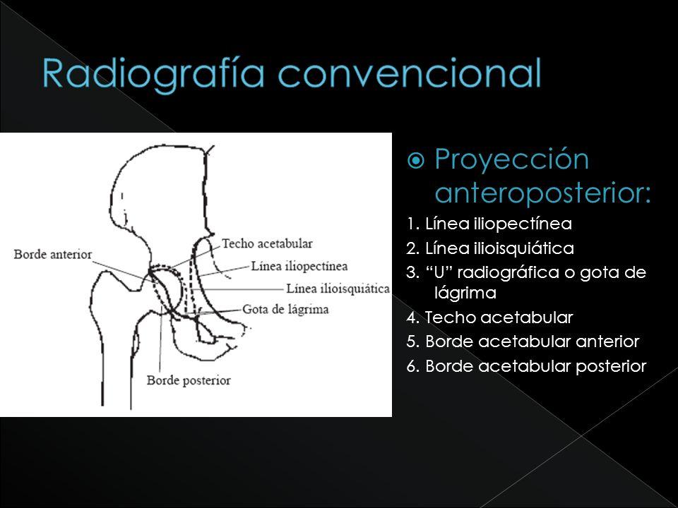 Proyección anteroposterior: 1. Línea iliopectínea 2. Línea ilioisquiática 3. U radiográfica o gota de lágrima 4. Techo acetabular 5. Borde acetabular