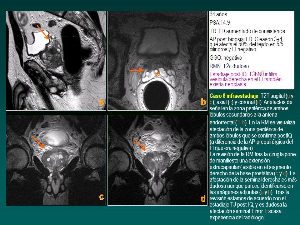64 años PSA:14.9 TR: LD aumentado de consistencia AP post-biopsia: LD: Gleason 3+4 que afecta el 50% del tejido en 5/5 cilindros y LI negativo GGO: ne