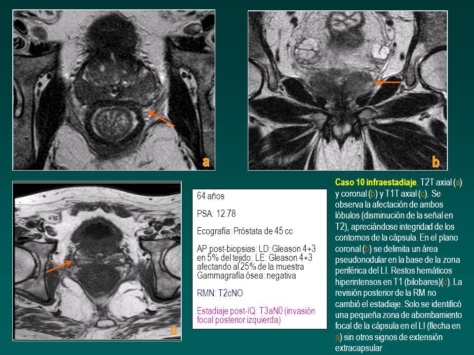 64 años PSA: 12.78 Ecografía: Próstata de 45 cc AP post-biopsias: LD: Gleason 4+3 en 5% del tejido; LE: Gleason 4+3 afectando al 25% de la muestra Gam