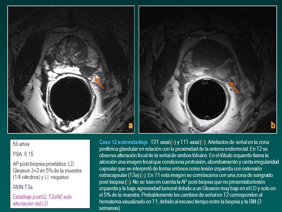 56 años PSA: 6,15 AP post-biopsia prostática: LD: Gleason 3+3 en 5% de la muestra (1/4 cilindros) y LI: negativo RMN T3a Estadiaje postIQ: T2aN0 solo