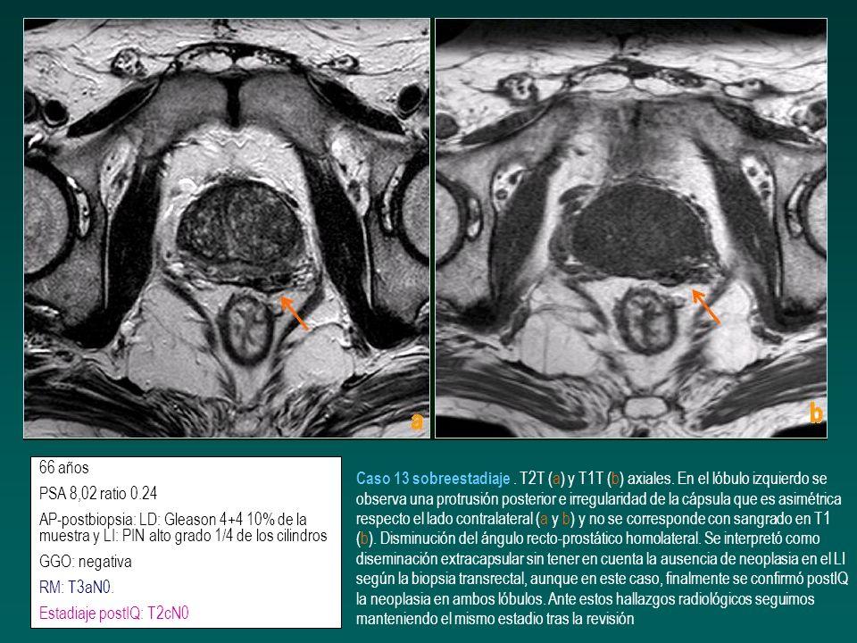 66 años PSA 8,02 ratio 0.24 AP-postbiopsia: LD: Gleason 4+4 10% de la muestra y LI: PIN alto grado 1/4 de los cilindros GGO: negativa RM: T3aN0. Estad