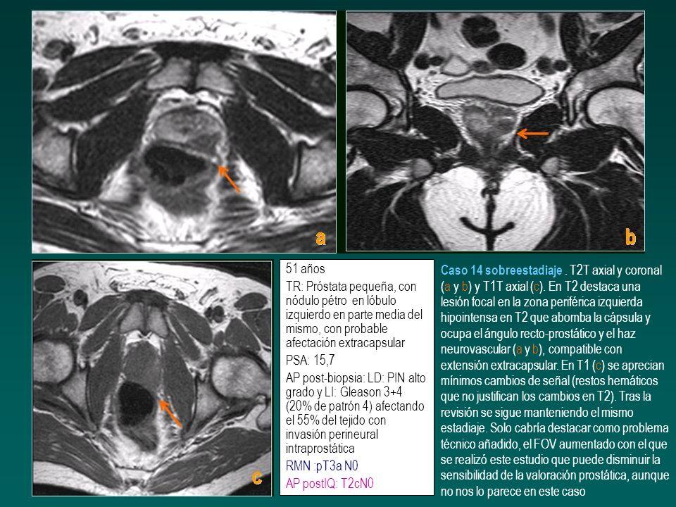 51 años TR: Próstata pequeña, con nódulo pétro en lóbulo izquierdo en parte media del mismo, con probable afectación extracapsular PSA: 15,7 AP post-b