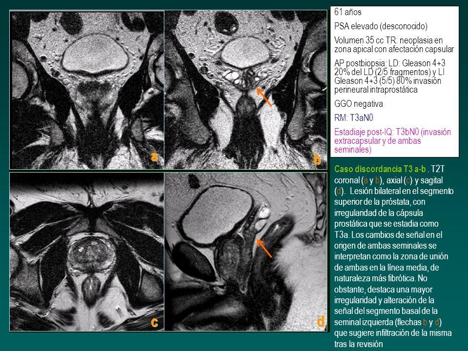 61 años PSA elevado (desconocido) Volumen 35 cc TR: neoplasia en zona apical con afectación capsular AP postbiopsia: LD: Gleason 4+3 20% del LD (2/5 f