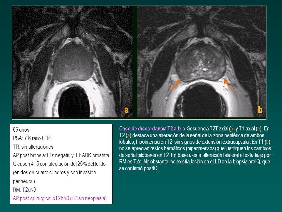 66 años PSA: 7.6 ratio 0.14 TR: sin alteraciones AP post-biopsia: LD: negatiu y LI: ADK próstata Gleason 4+5 con afectación del 25% del tejido (en dos