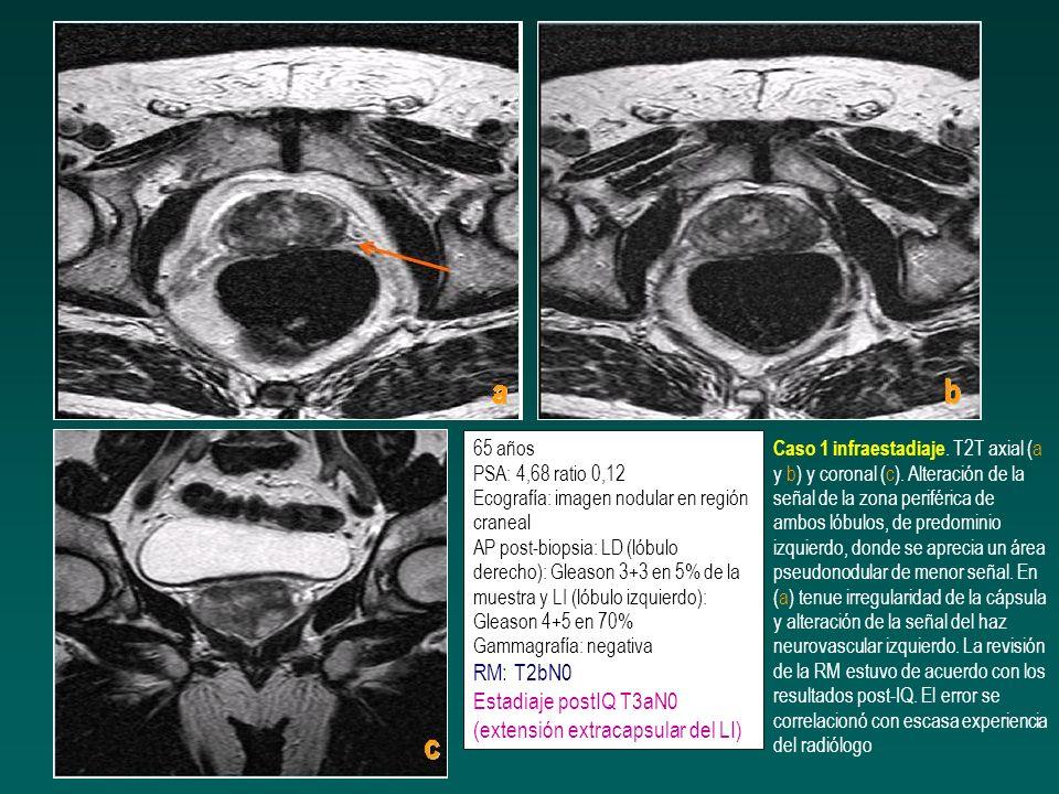 56 años PSA: 6,15 AP post-biopsia prostática: LD: Gleason 3+3 en 5% de la muestra (1/4 cilindros) y LI: negativo RMN T3a Estadiaje postIQ: T2aN0 solo afectación del LD Caso 12 sobrestadiaje.