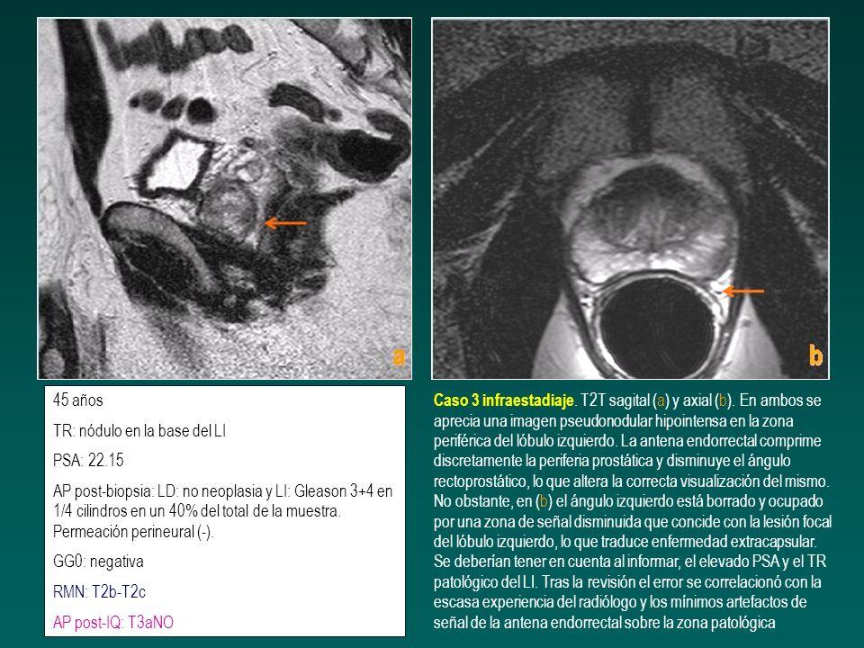 63 años PSA: 6,5 ratio 0,08 AP post-biopsia: LD Gleason 3+4 (40%) en 90% de la muestra (4/4 cilindros) LI: Gl 3+4 (40%) en 10% de la muestra (1/4) TC y GGO negativos RM: T2cN0 AP post-IQ: T3aN0 Caso 4 infraestadiaje.