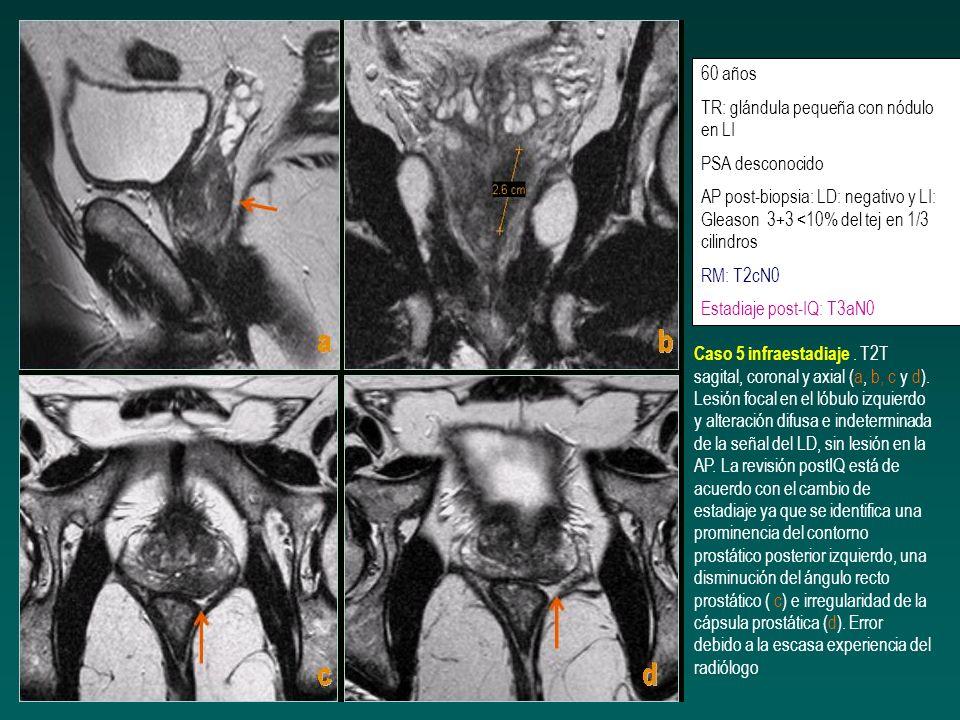 61 años PSA elevado (desconocido) Volumen 35 cc TR: neoplasia en zona apical con afectación capsular AP postbiopsia: LD: Gleason 4+3 20% del LD (2/5 fragmentos) y LI Gleason 4+3 (5/5) 80% invasión perineural intraprostática GGO negativa RM: T3aN0 Estadiaje post-IQ: T3bN0 (invasión extracapsular y de ambas seminales) Caso discordancia T3 a-b.