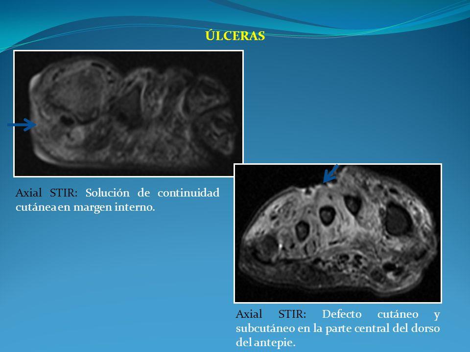 ÚLCERAS Axial STIR: Defecto cutáneo y subcutáneo en la parte central del dorso del antepie. Axial STIR: Solución de continuidad cutánea en margen inte