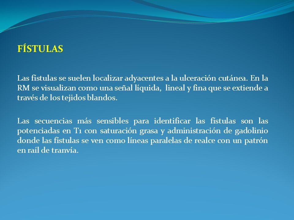 FÍSTULAS Las fístulas se suelen localizar adyacentes a la ulceración cutánea. En la RM se visualizan como una señal líquida, lineal y fina que se exti