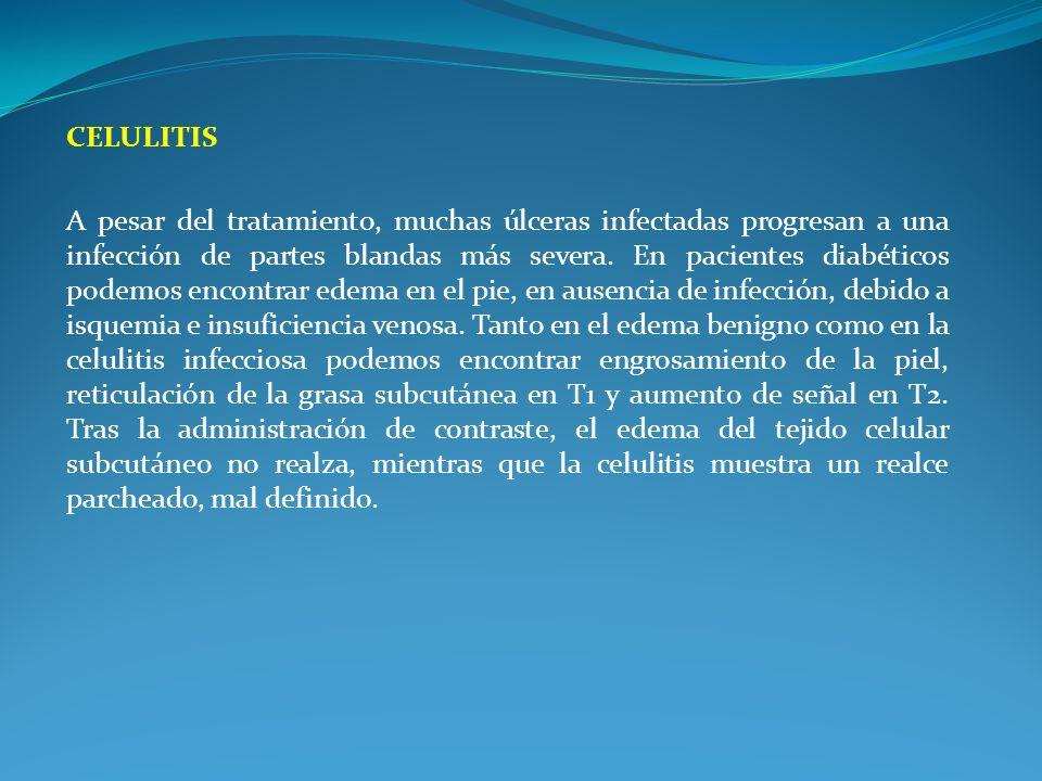 CELULITIS A pesar del tratamiento, muchas úlceras infectadas progresan a una infección de partes blandas más severa. En pacientes diabéticos podemos e