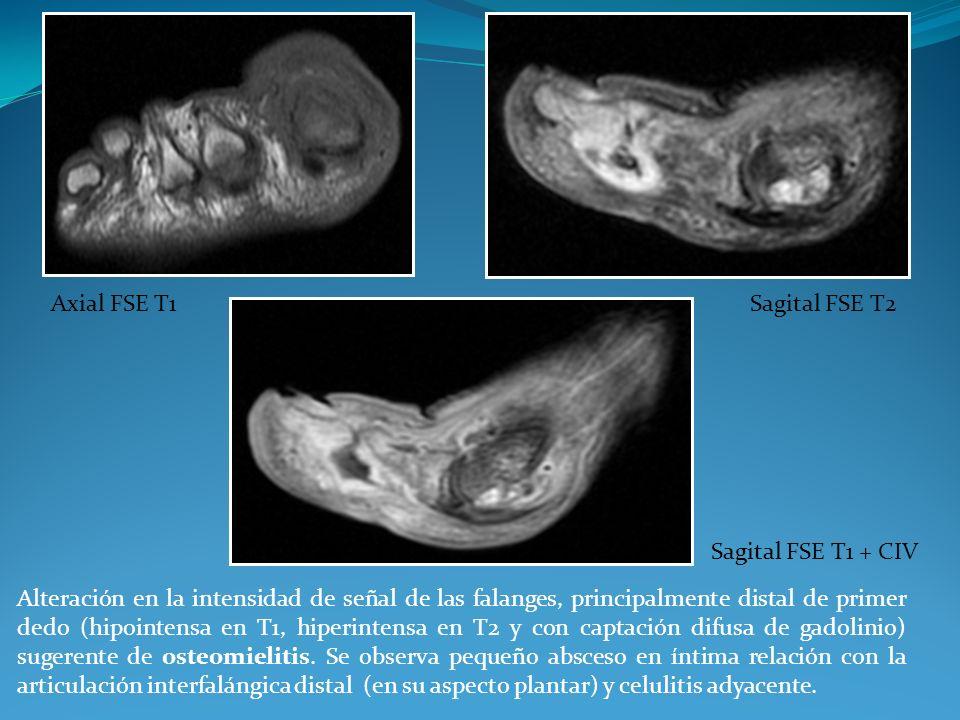 Alteración en la intensidad de señal de las falanges, principalmente distal de primer dedo (hipointensa en T1, hiperintensa en T2 y con captación difu