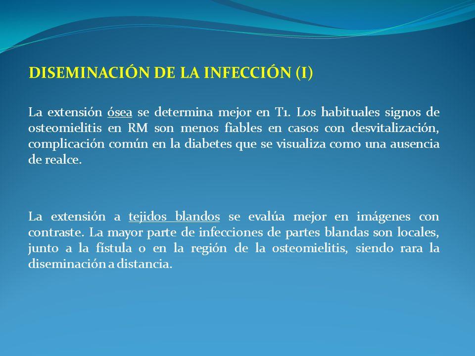DISEMINACIÓN DE LA INFECCIÓN (I) La extensión ósea se determina mejor en T1. Los habituales signos de osteomielitis en RM son menos fiables en casos c