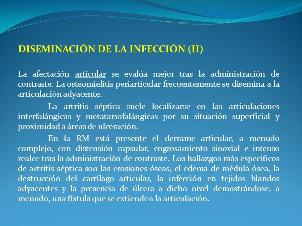 DISEMINACIÓN DE LA INFECCIÓN (II) La afectación articular se evalúa mejor tras la administración de contraste. La osteomielitis periarticular frecuent