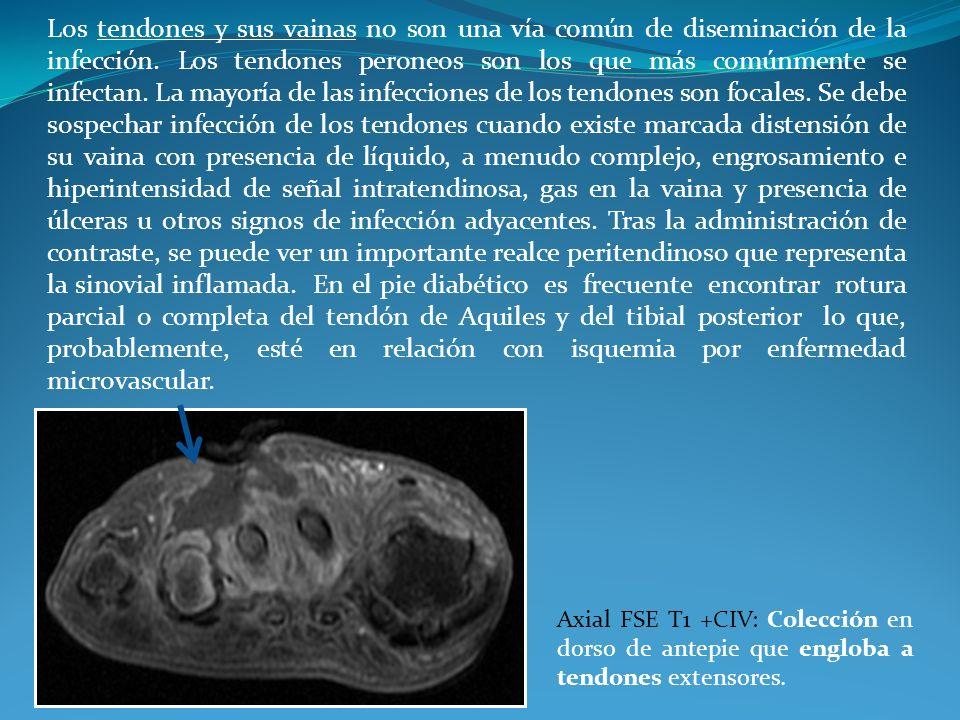 Los tendones y sus vainas no son una vía común de diseminación de la infección. Los tendones peroneos son los que más comúnmente se infectan. La mayor