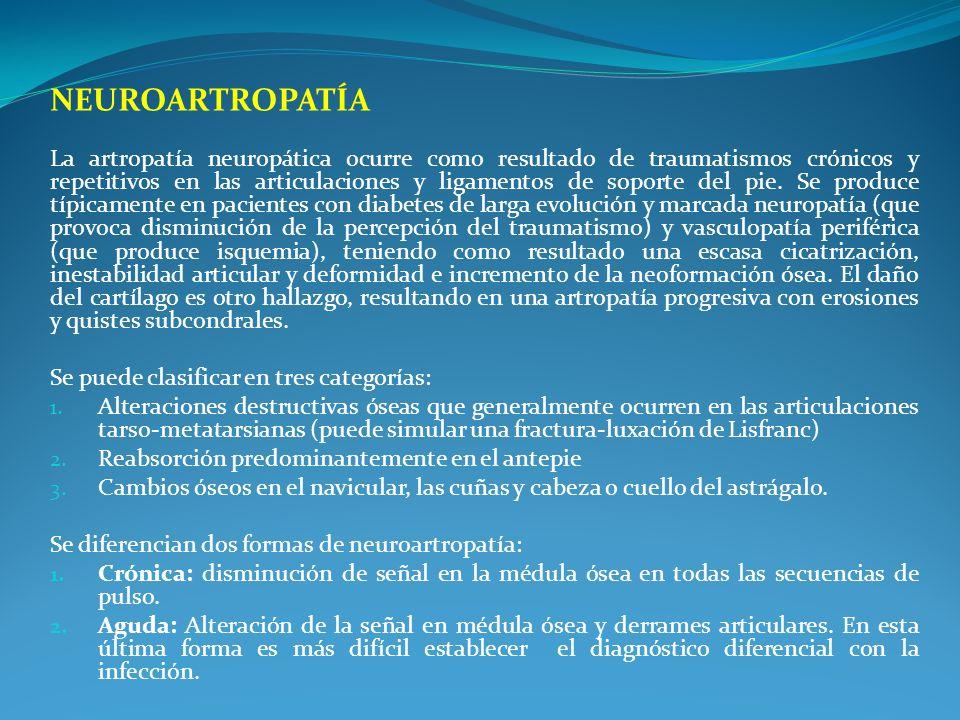 NEUROARTROPATÍA La artropatía neuropática ocurre como resultado de traumatismos crónicos y repetitivos en las articulaciones y ligamentos de soporte d