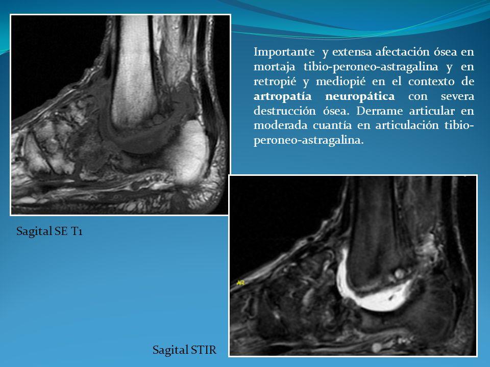 Importante y extensa afectación ósea en mortaja tibio-peroneo-astragalina y en retropié y mediopié en el contexto de artropatía neuropática con severa