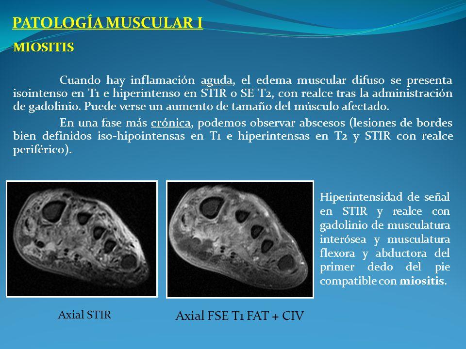 MIOSITIS Cuando hay inflamación aguda, el edema muscular difuso se presenta isointenso en T1 e hiperintenso en STIR o SE T2, con realce tras la admini