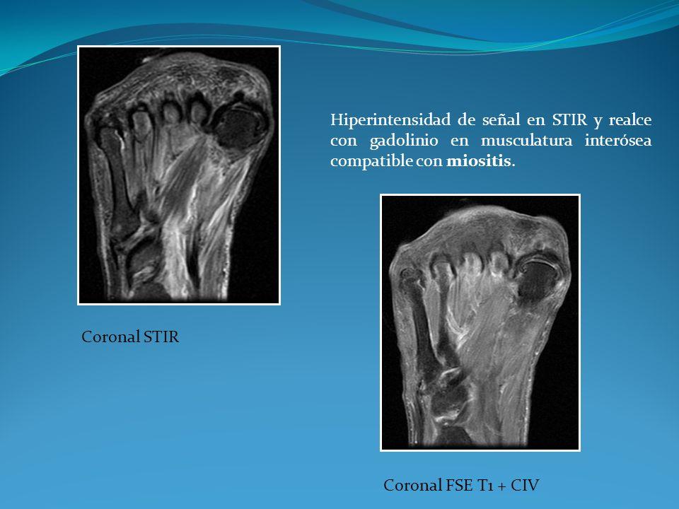 Coronal STIR Coronal FSE T1 + CIV Hiperintensidad de señal en STIR y realce con gadolinio en musculatura interósea compatible con miositis.